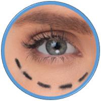Cosmetic Surgery Error Compensation