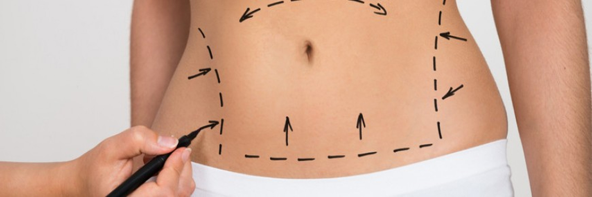Liposuction Errors