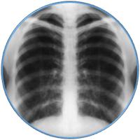 Work Related Respiratory Disease